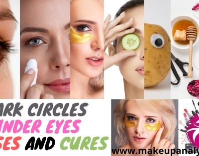 Dark Circles under eyes-Causes and Cures